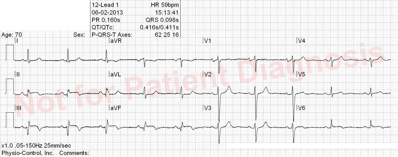 EKG practice test – ECG Quiz