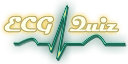 ECG Quiz - Online electrocardiogram interpretation tests (English version)